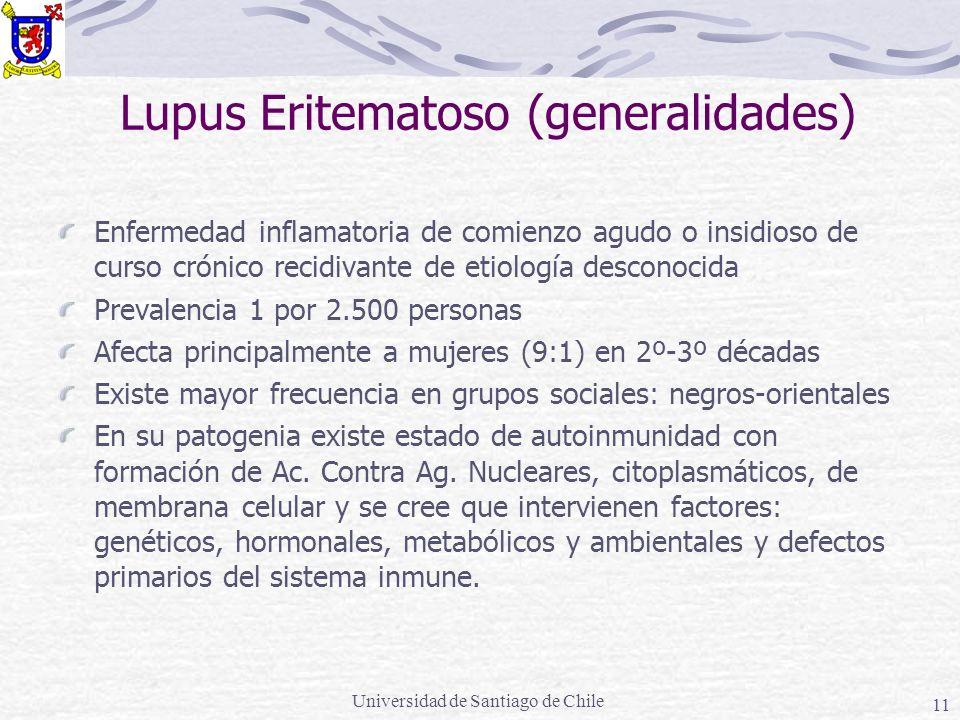 Lupus Eritematoso (generalidades)