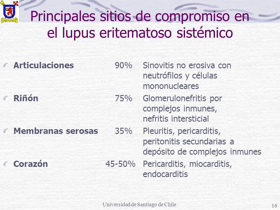 Principales sitios de compromiso en el lupus eritematoso sistémico