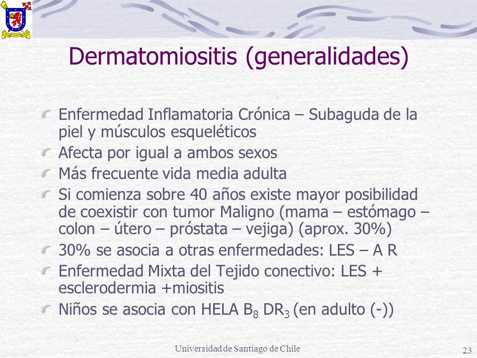 Dermatomiositis (generalidades)
