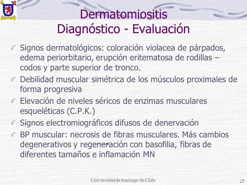 Dermatomiositis Diagnóstico - Evaluación