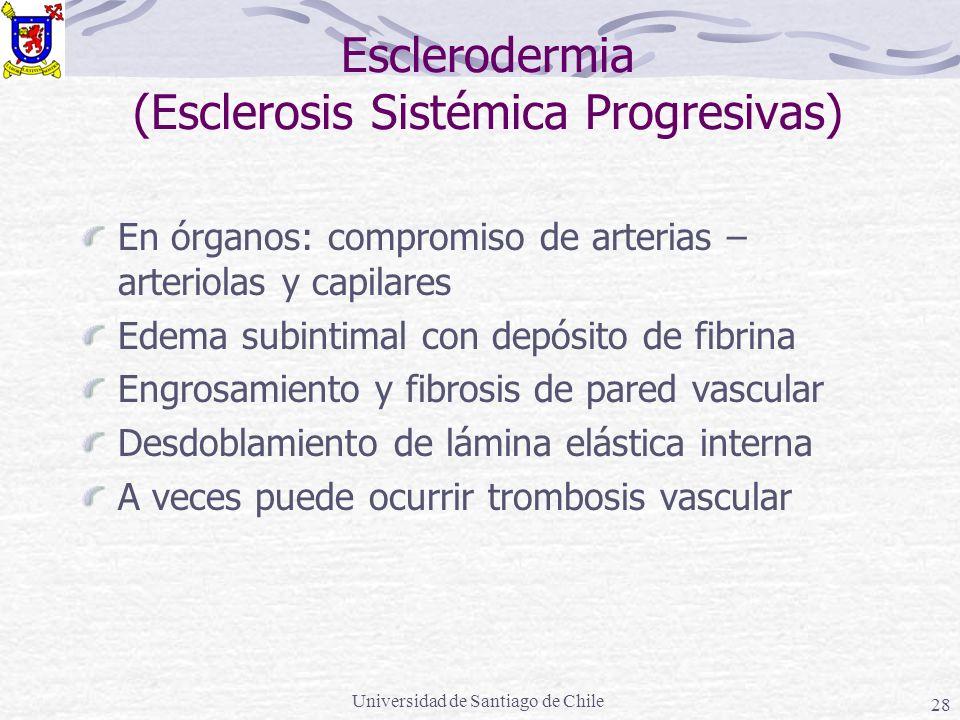 Esclerodermia (Esclerosis Sistémica Progresivas)