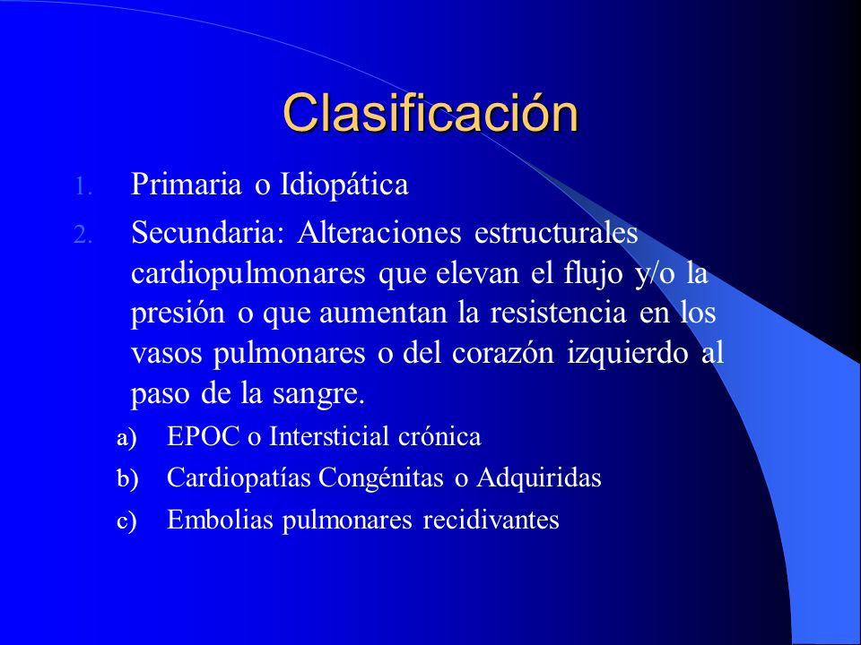 Clasificación Primaria o Idiopática