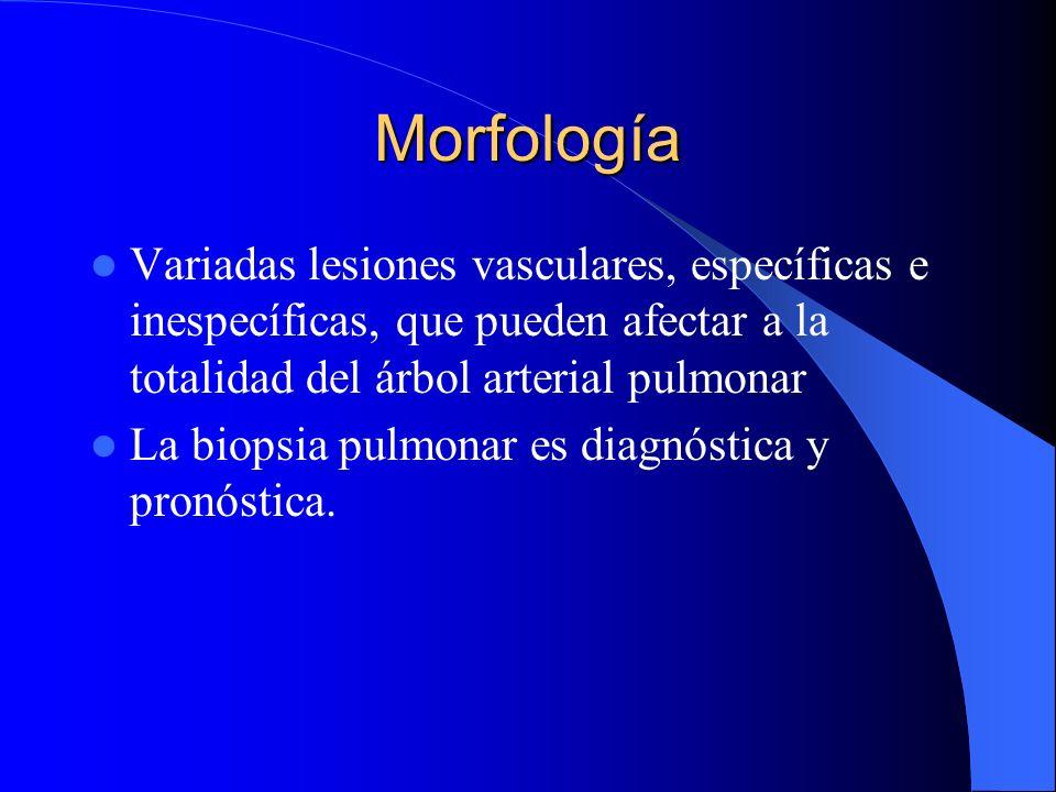 MorfologíaVariadas lesiones vasculares, específicas e inespecíficas, que pueden afectar a la totalidad del árbol arterial pulmonar.