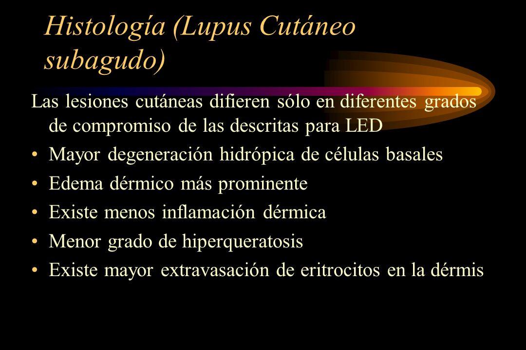 Histología (Lupus Cutáneo subagudo)