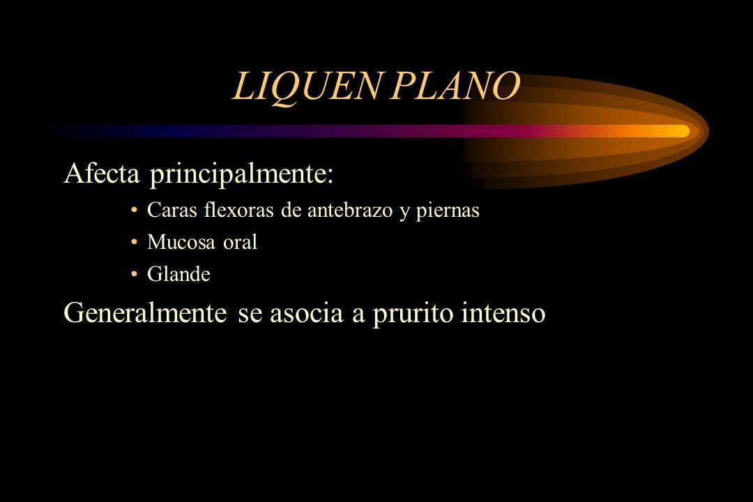 LIQUEN PLANO Afecta principalmente: