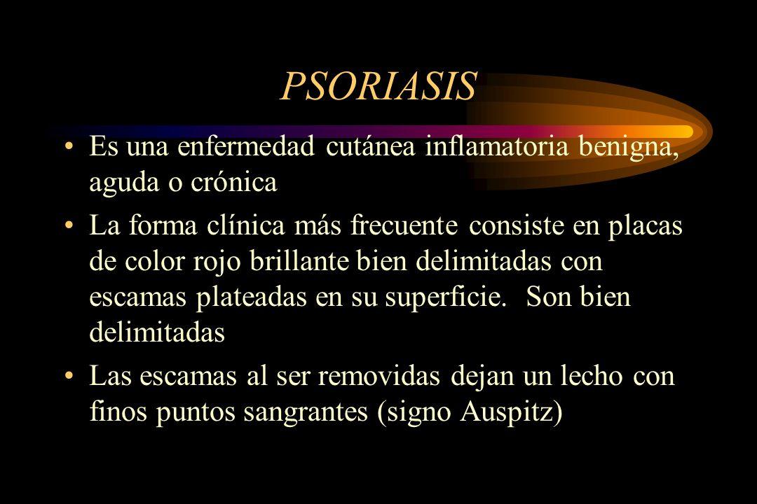 PSORIASIS Es una enfermedad cutánea inflamatoria benigna, aguda o crónica.
