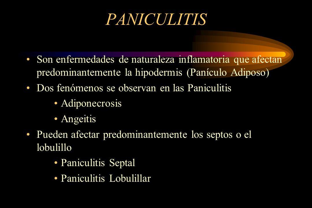 PANICULITIS Son enfermedades de naturaleza inflamatoria que afectan predominantemente la hipodermis (Panículo Adiposo)