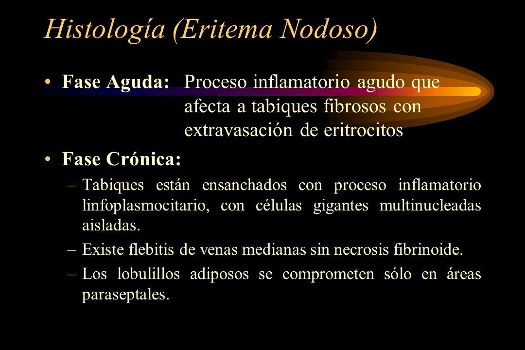 Histología (Eritema Nodoso)