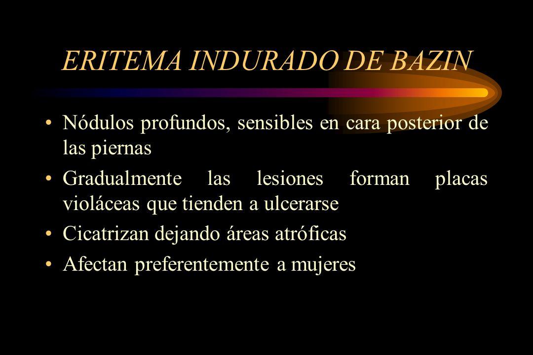 ERITEMA INDURADO DE BAZIN