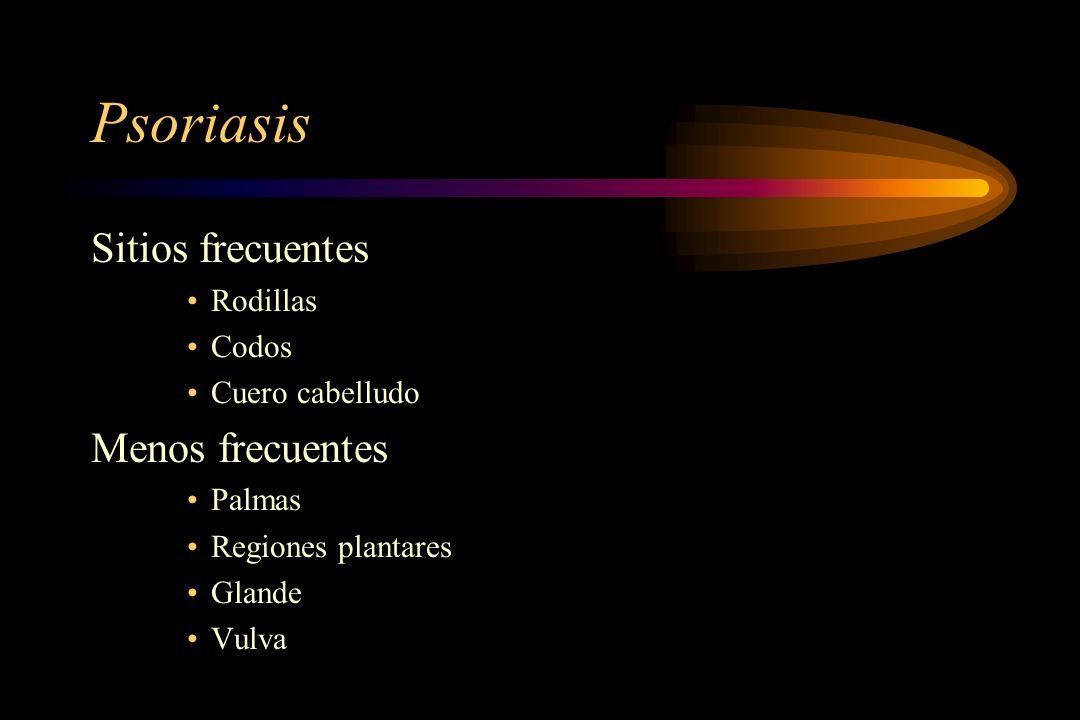 Psoriasis Sitios frecuentes Menos frecuentes Rodillas Codos