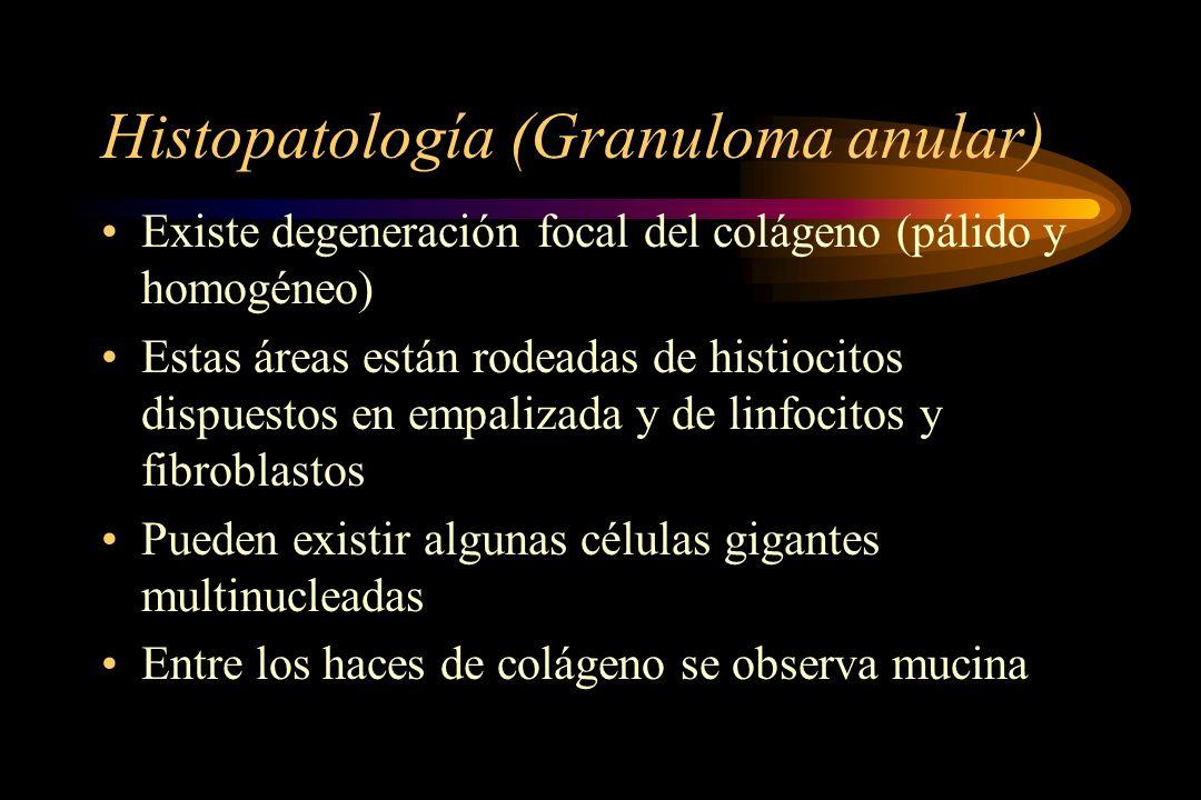 Histopatología (Granuloma anular)