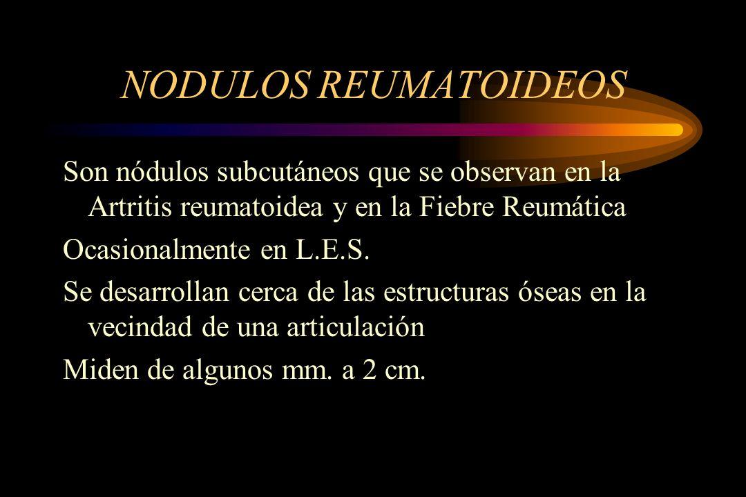 NODULOS REUMATOIDEOS Son nódulos subcutáneos que se observan en la Artritis reumatoidea y en la Fiebre Reumática.