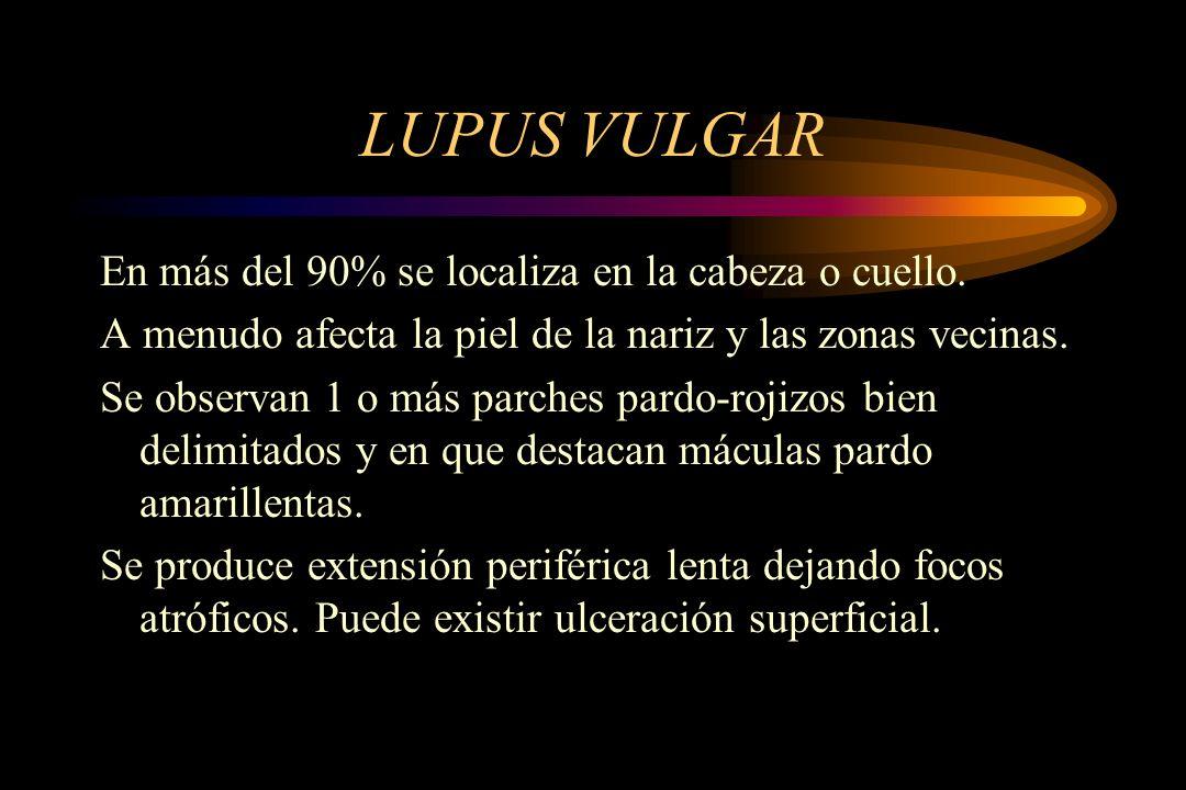LUPUS VULGAR En más del 90% se localiza en la cabeza o cuello.