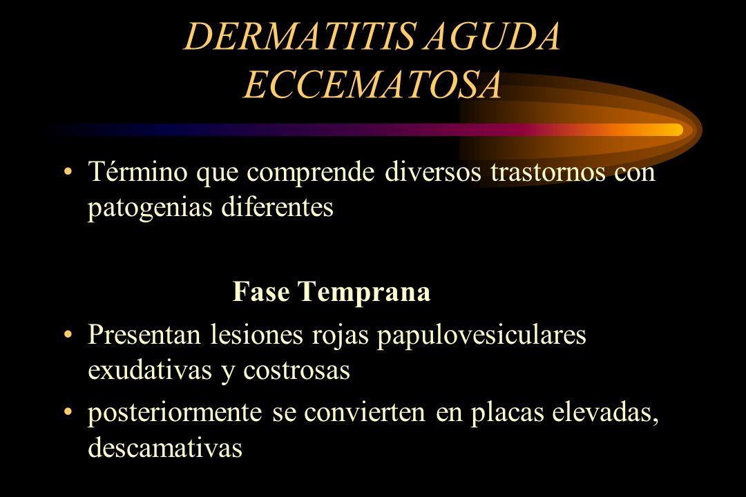 DERMATITIS AGUDA ECCEMATOSA