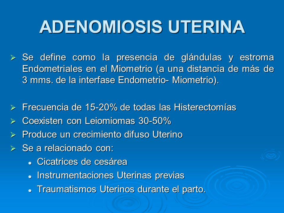ADENOMIOSIS UTERINA