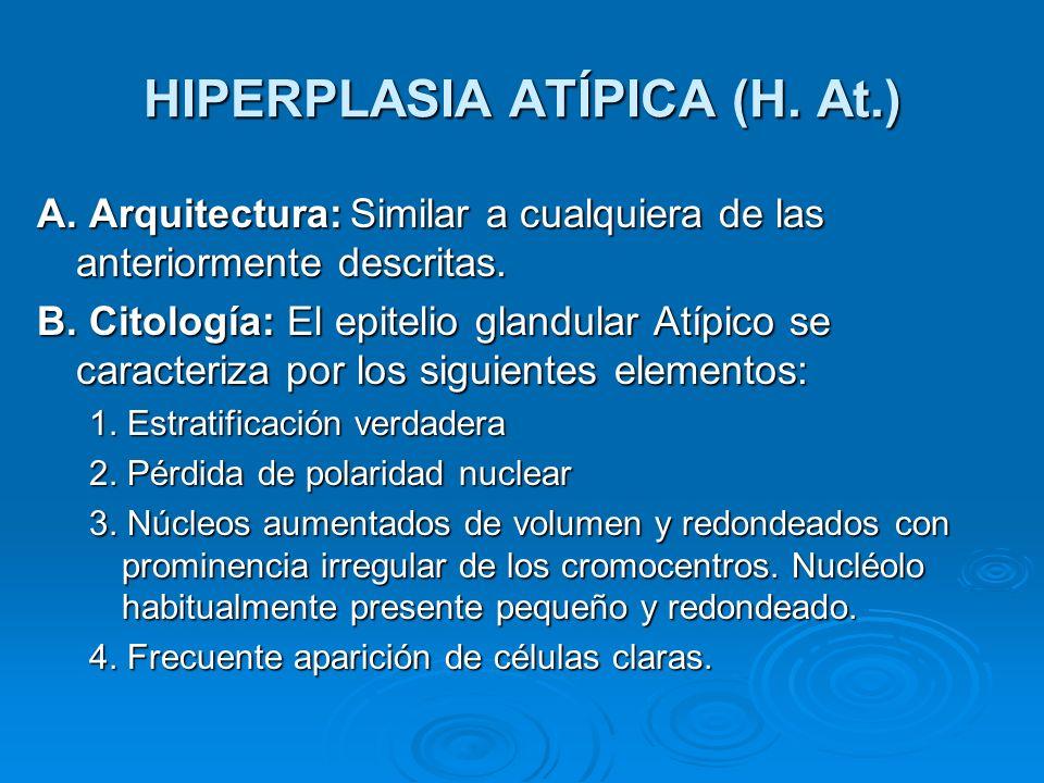 HIPERPLASIA ATÍPICA (H. At.)