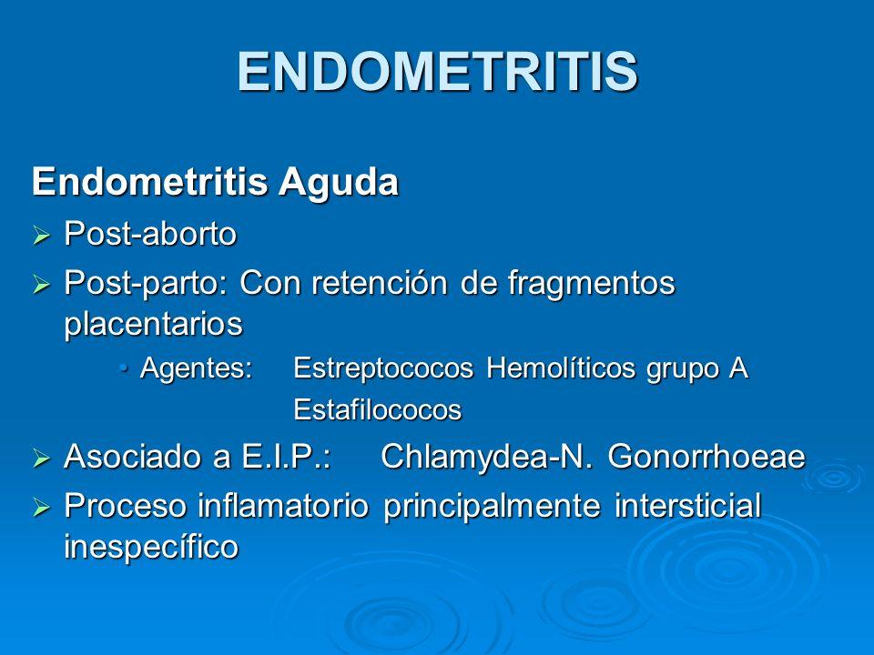ENDOMETRITIS Endometritis Aguda Post-aborto