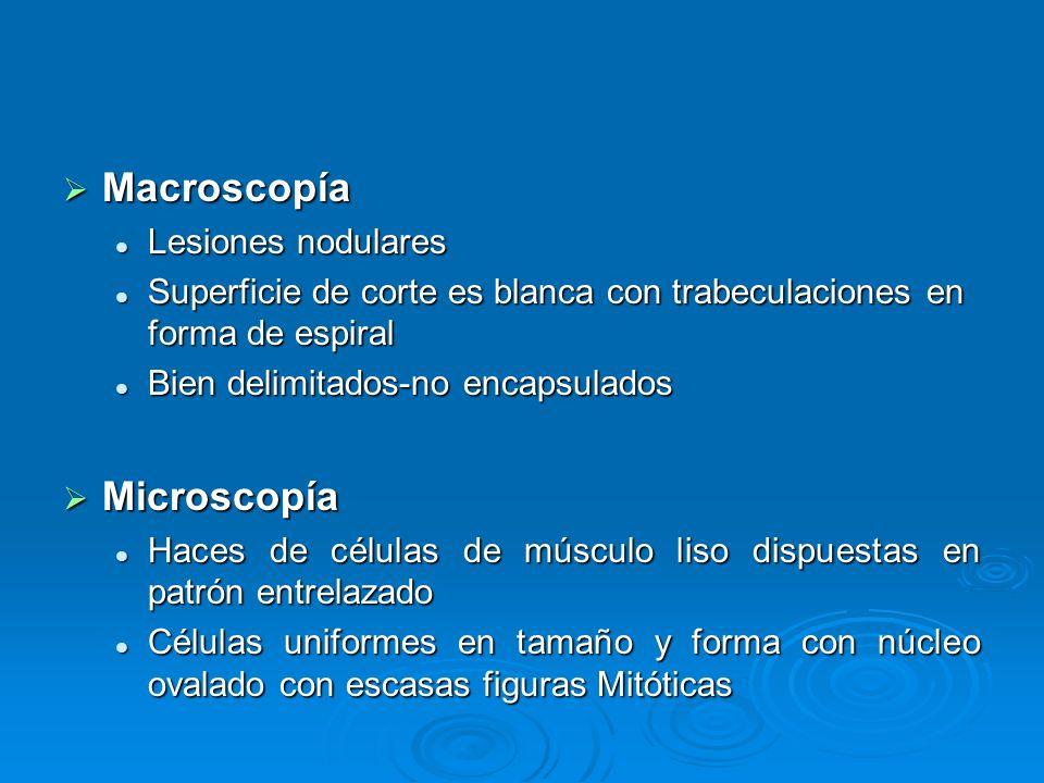 Macroscopía Microscopía Lesiones nodulares