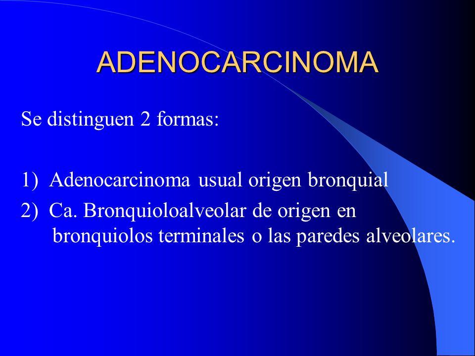 ADENOCARCINOMA Se distinguen 2 formas: