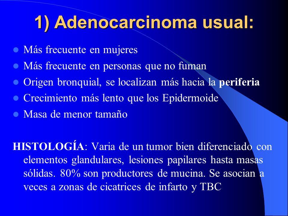 1) Adenocarcinoma usual: