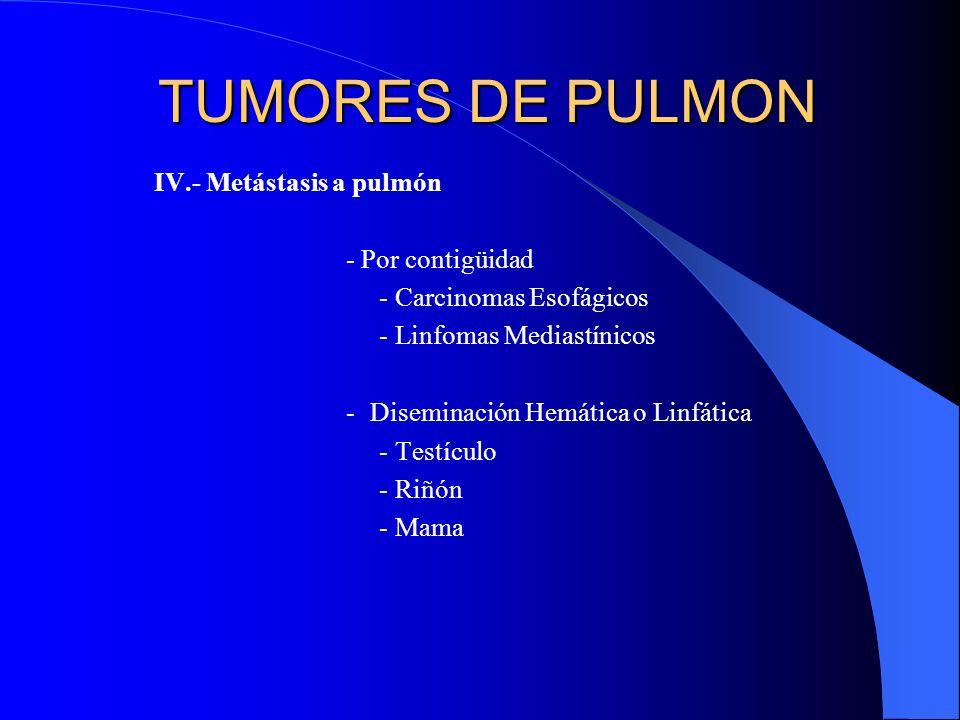 TUMORES DE PULMON IV.- Metástasis a pulmón - Por contigüidad