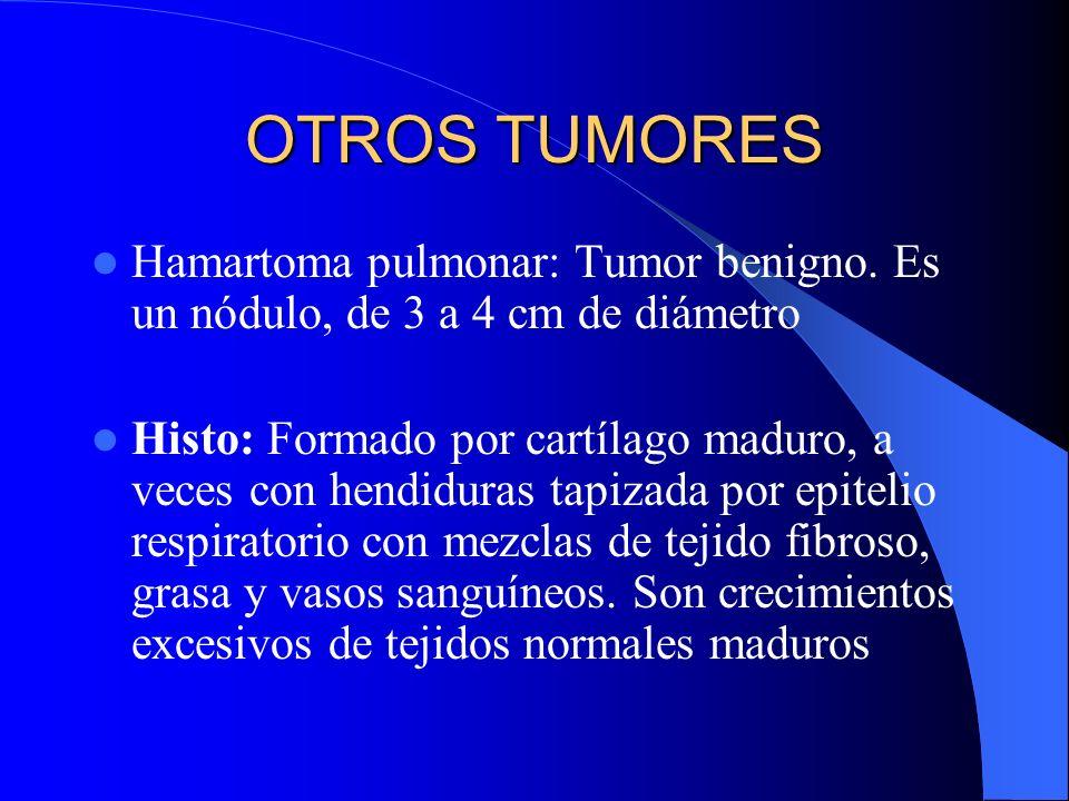 OTROS TUMORESHamartoma pulmonar: Tumor benigno. Es un nódulo, de 3 a 4 cm de diámetro.