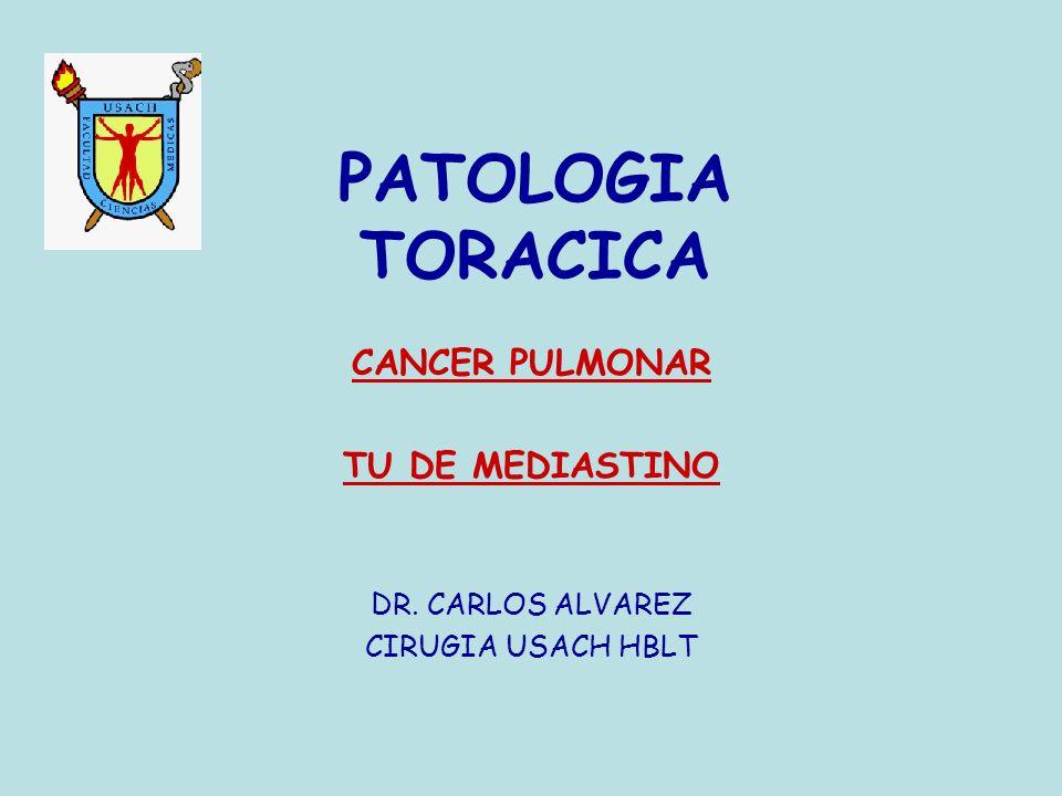 CANCER PULMONAR TU DE MEDIASTINO DR. CARLOS ALVAREZ CIRUGIA USACH HBLT