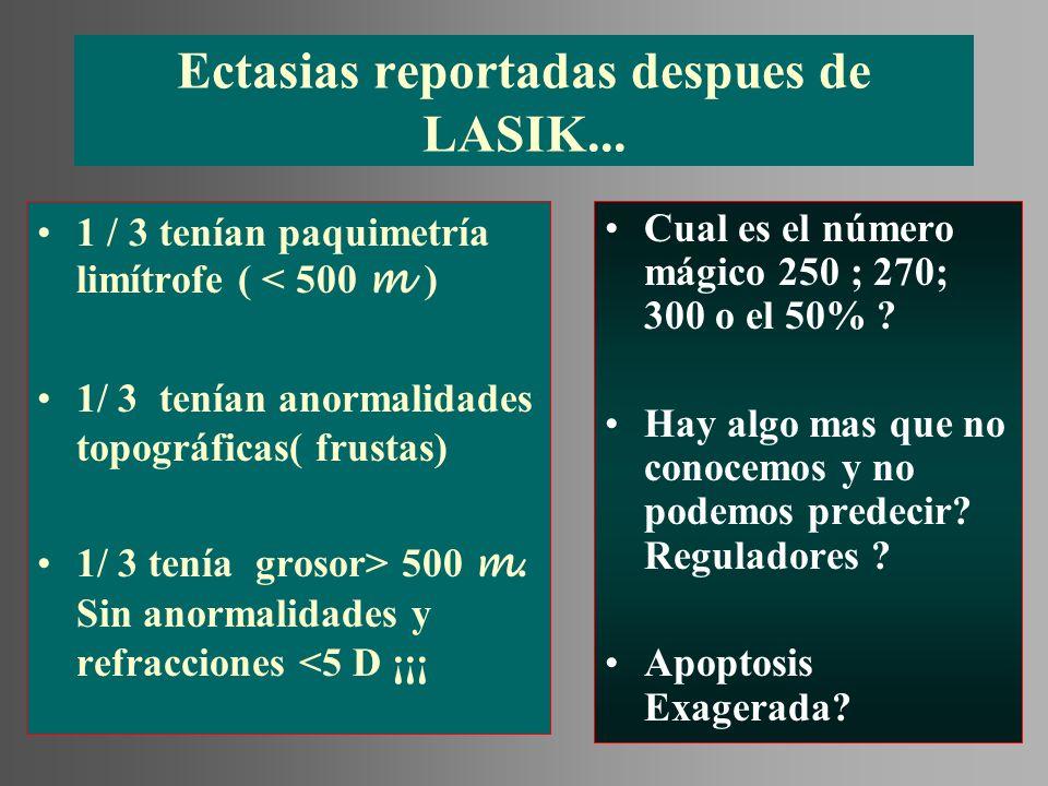 Ectasias reportadas despues de LASIK...