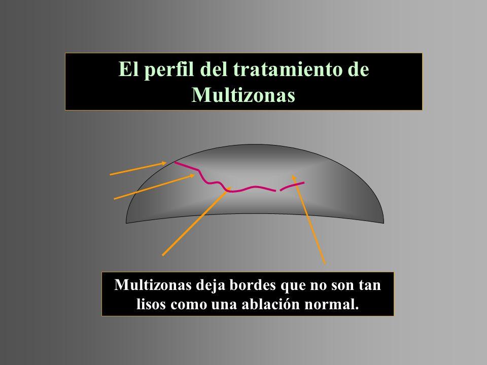 El perfil del tratamiento de Multizonas