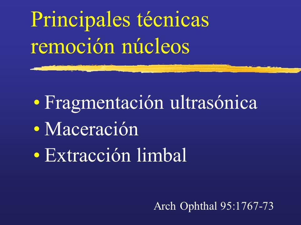 Principales técnicas remoción núcleos