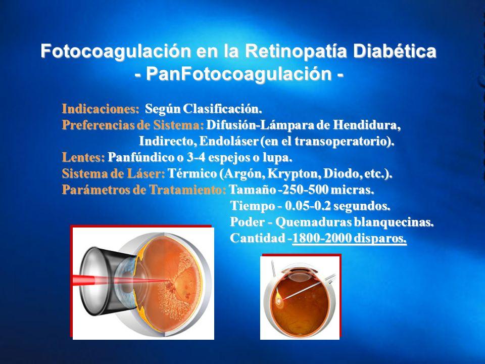 Fotocoagulación en la Retinopatía Diabética - PanFotocoagulación -