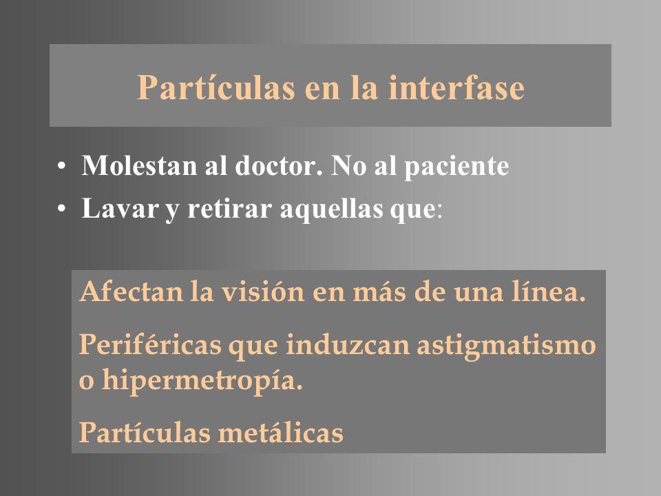 Partículas en la interfase
