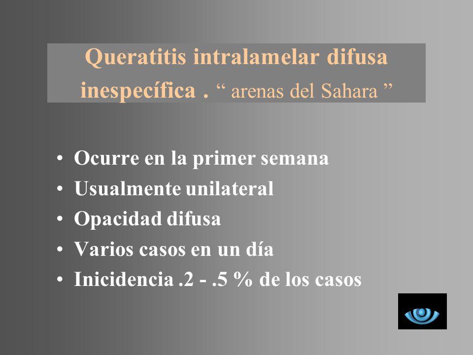 Queratitis intralamelar difusa inespecífica . arenas del Sahara