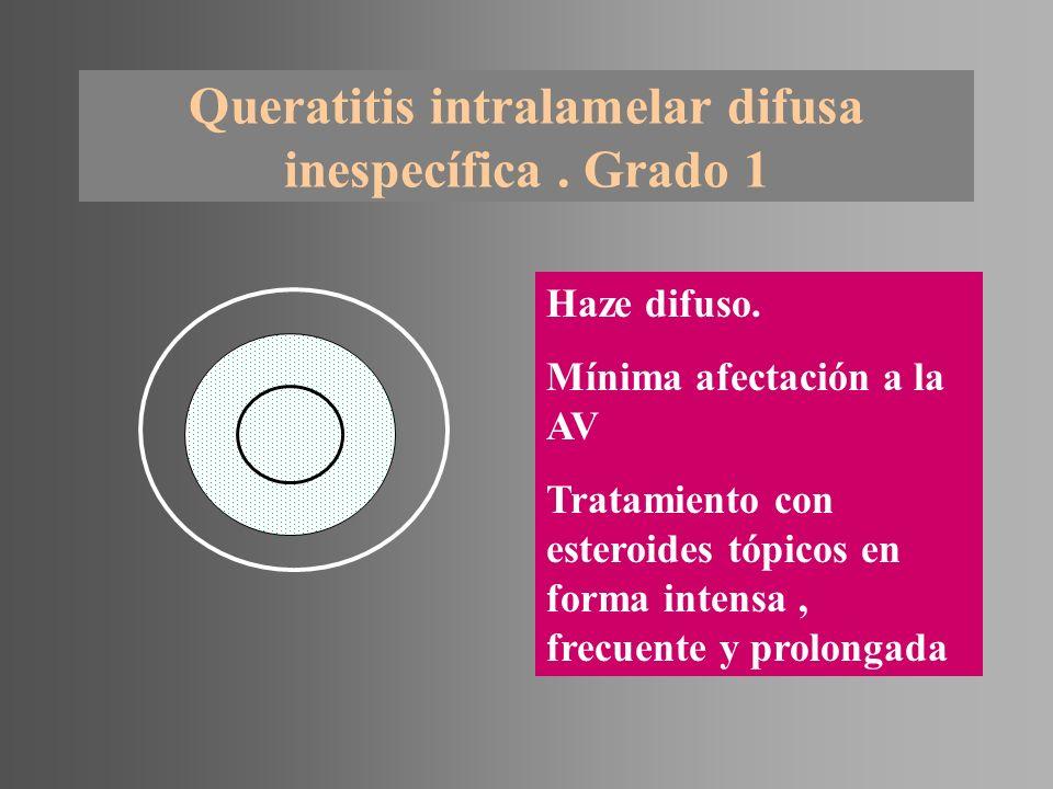 Queratitis intralamelar difusa inespecífica . Grado 1