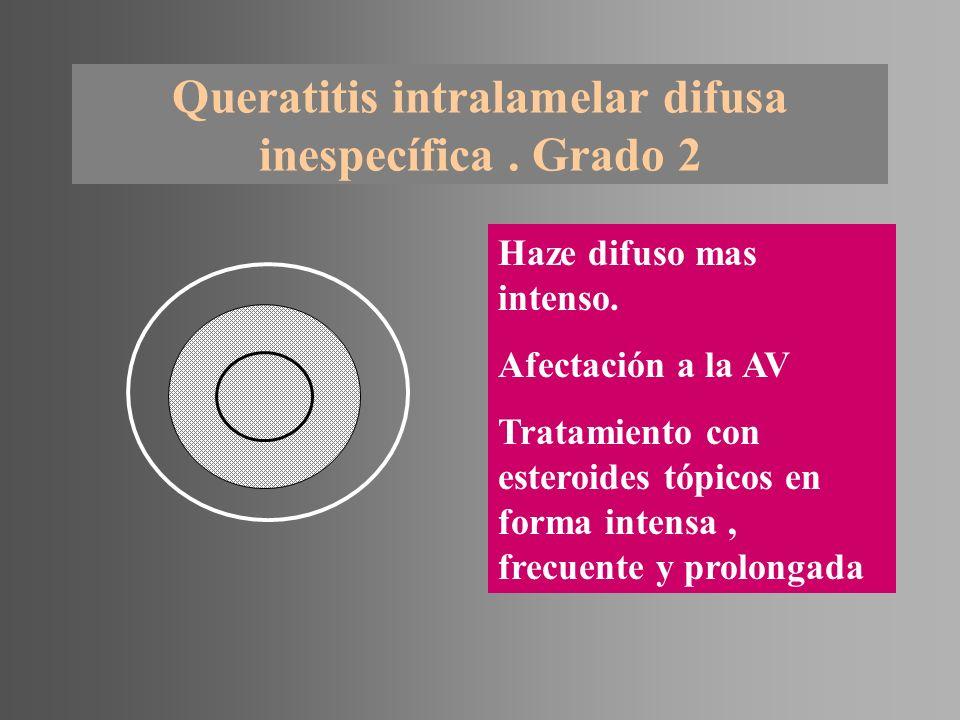 Queratitis intralamelar difusa inespecífica . Grado 2