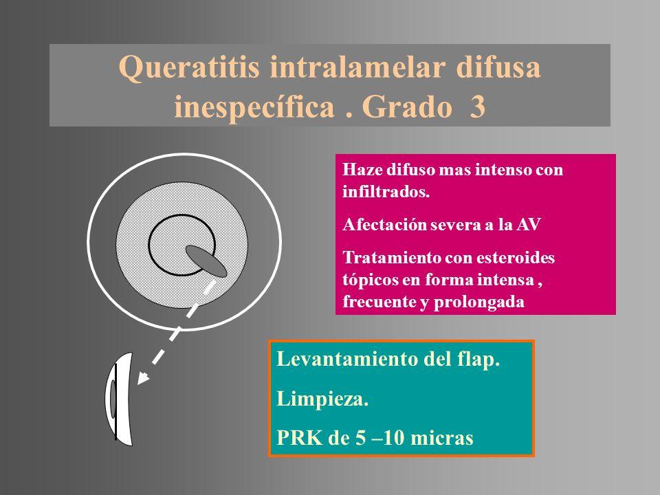 Queratitis intralamelar difusa inespecífica . Grado 3