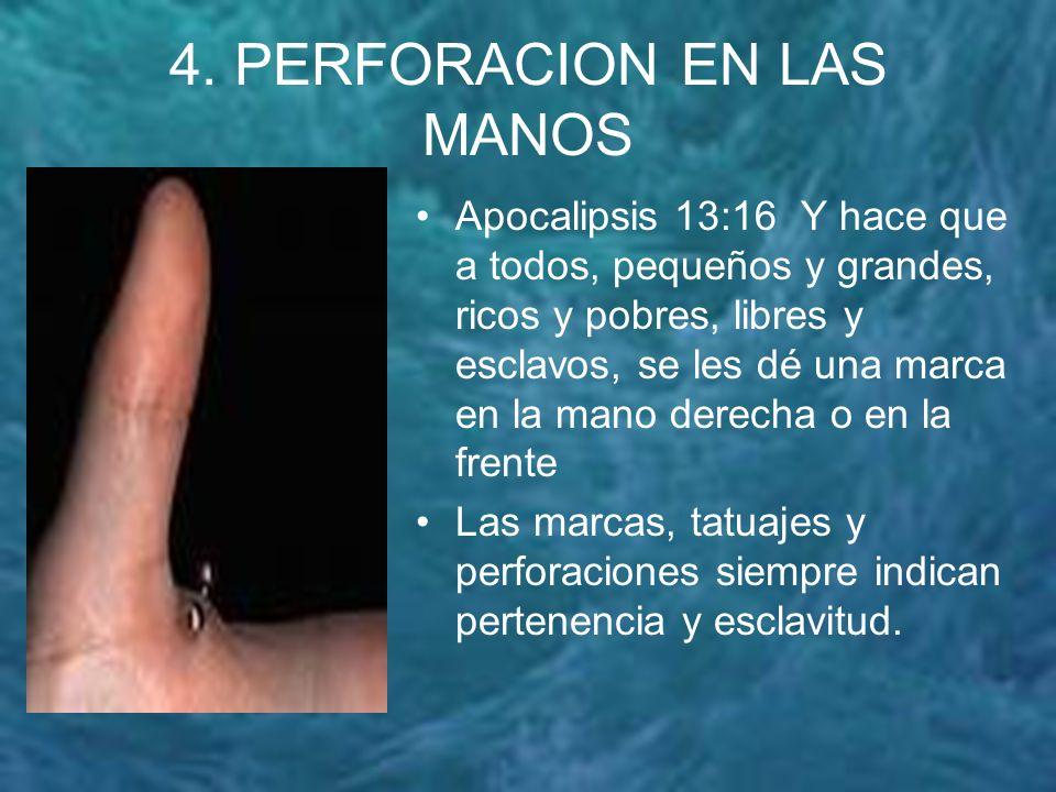 4. PERFORACION EN LAS MANOS