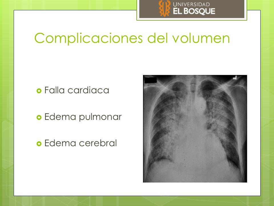 Complicaciones del volumen