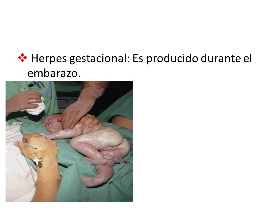 Herpes gestacional: Es producido durante el embarazo.