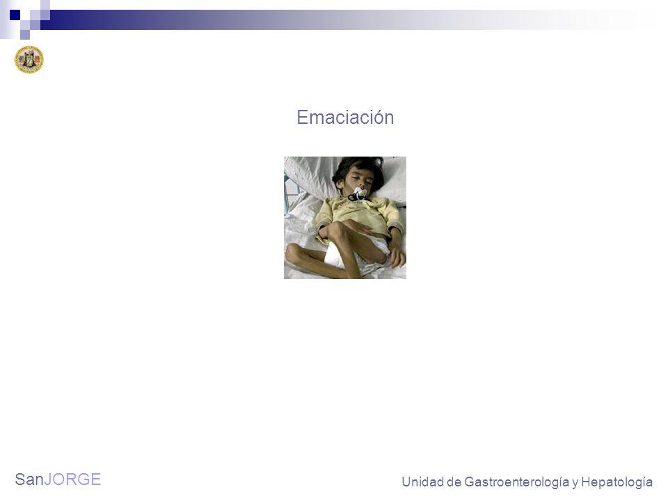 Emaciación Unidad de Gastroenterología y Hepatología