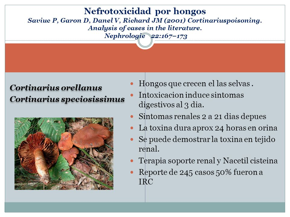 Nefrotoxicidad por hongos Saviuc P, Garon D, Danel V, Richard JM (2001) Cortinariuspoisoning. Analysis of cases in the literature. Nephrologie 22:167–173