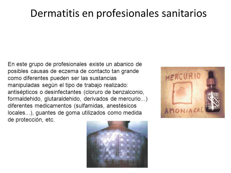 Dermatitis en profesionales sanitarios