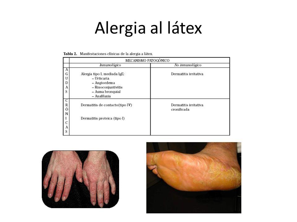 Alergia al látex