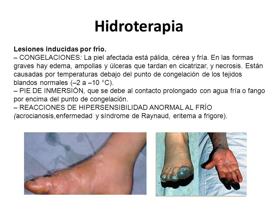 Hidroterapia Lesiones inducidas por frío.