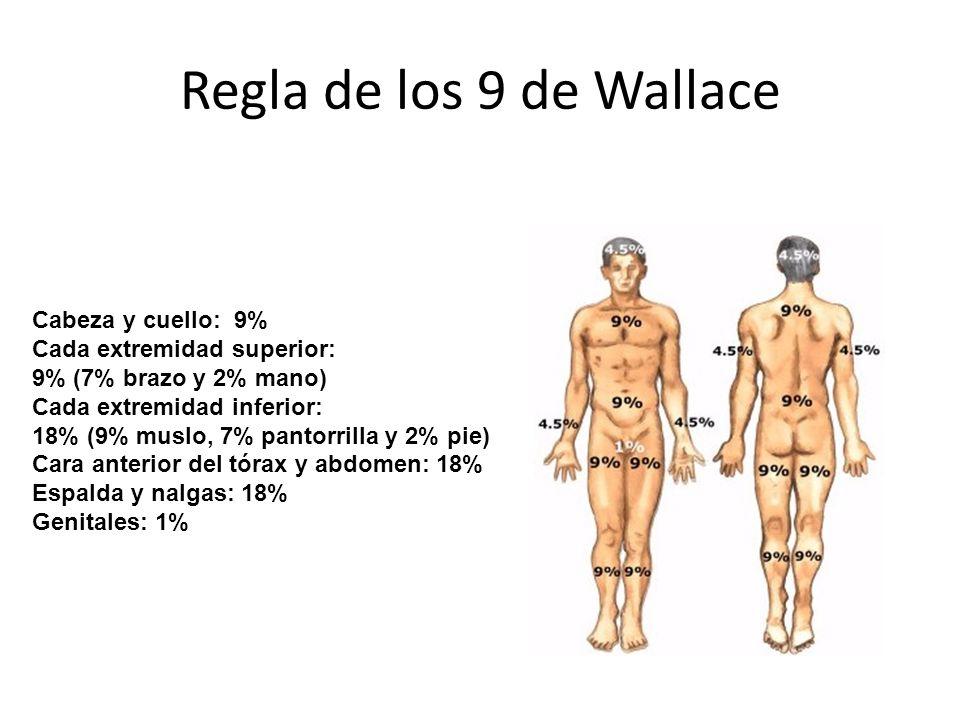 Regla de los 9 de Wallace Cabeza y cuello: 9%