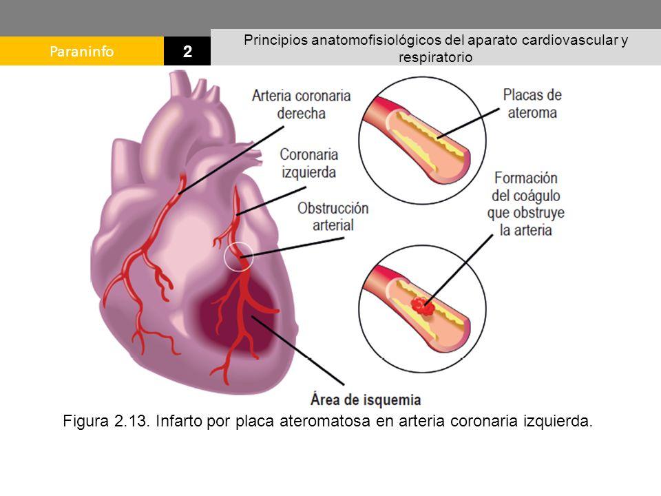 Asombroso Anatomía Ostium Coronario Imagen - Imágenes de Anatomía ...