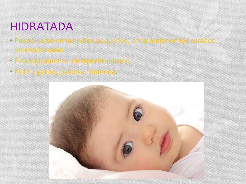 HIDRATADA Puede verse en los niños pequeños, en la mujer en los estados premenstruales. Patológicamente en hipertiroidismo.