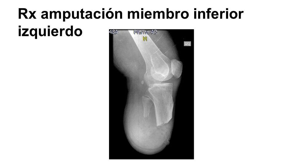 Osteomielitis en pie diab tico ppt video online descargar for Interior izquierdo