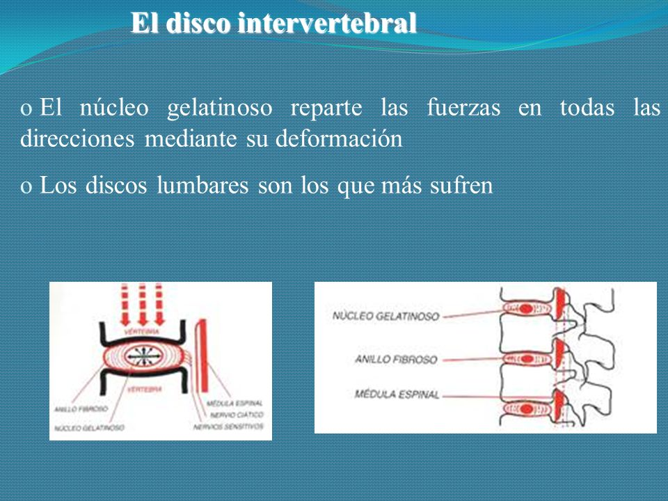 El disco intervertebral