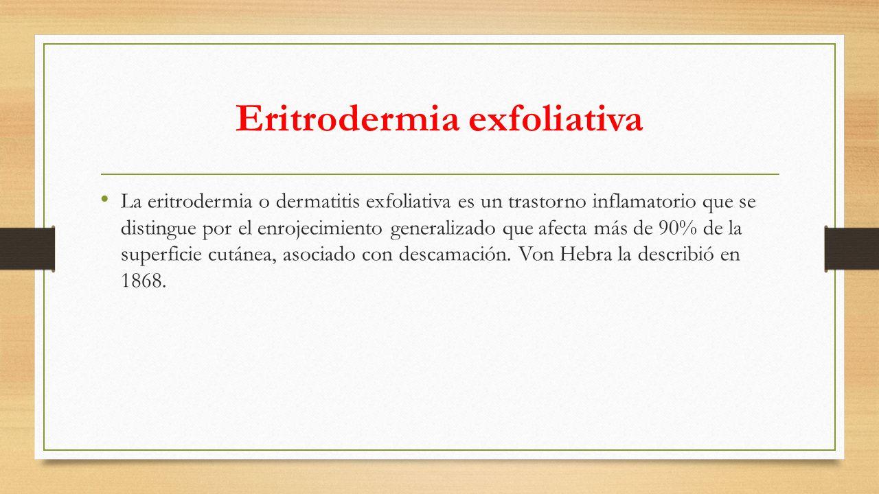 Eritrodermia exfoliativa